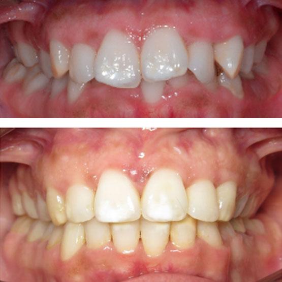 Deep Bite with Flared Teeth
