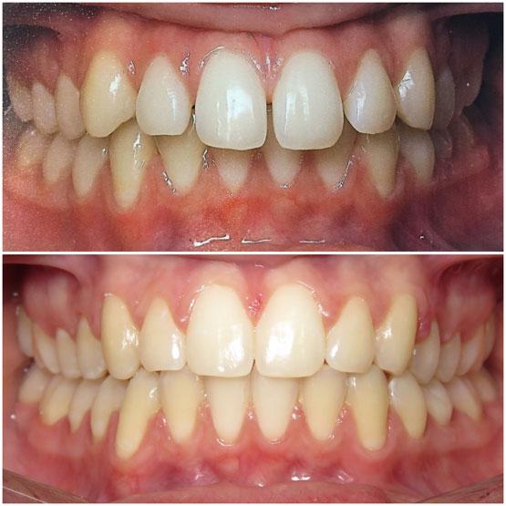 Dental Spacing