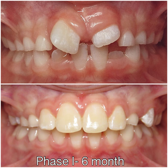 Phase-I Rotated incisors